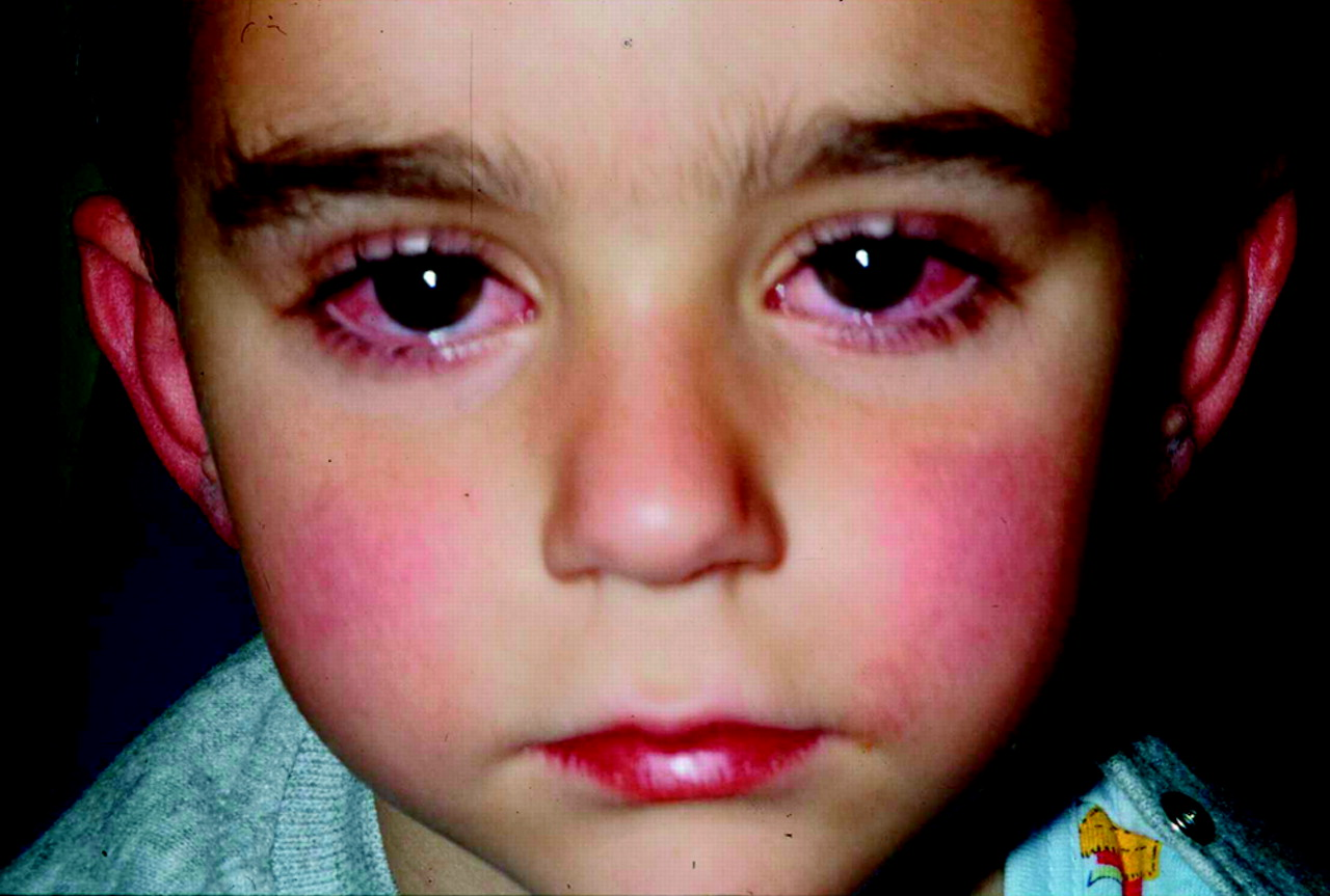 the kawasaki disease Kawasaki disease is an uncommon childhood illness that causes inflammation of  the blood vessels that supply blood to the heart.