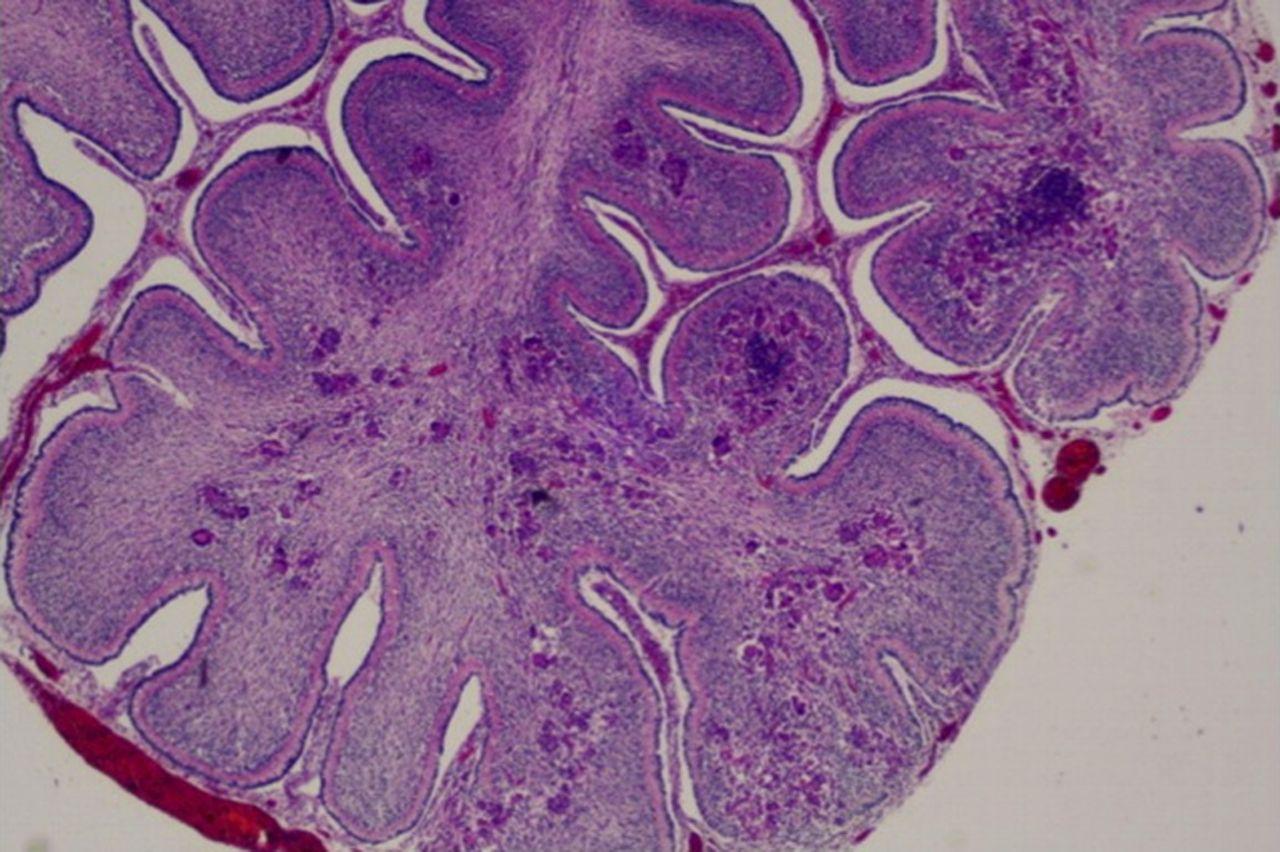 download Leukocyte